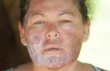 Luz Mercedes Acosta, una de las miles de afectadas por los derrames. Foto Jesús Ballesteros/ Expresoweb